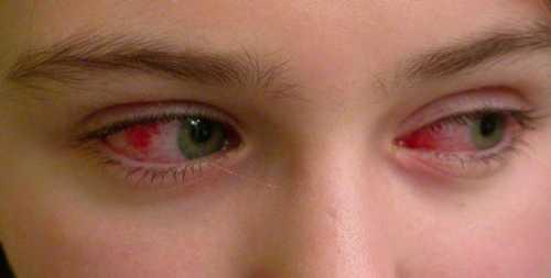 Выраженный болевой синдром не позволяет ребенку часто открывать глазки