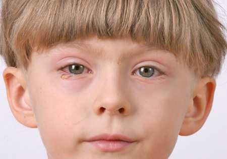 Конъюнктивит у детей: вирусный и бактериальный: