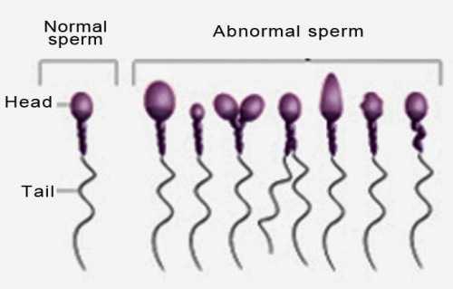 Даже малейшее несоответствие сперматозоида эталону приводит к незамедлительной выбраковке этой клетки
