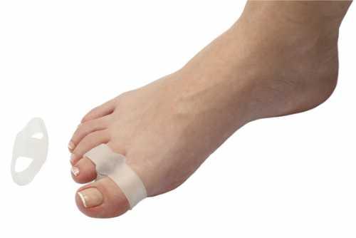 Повреждение вызывает сильную боль у пострадавшего