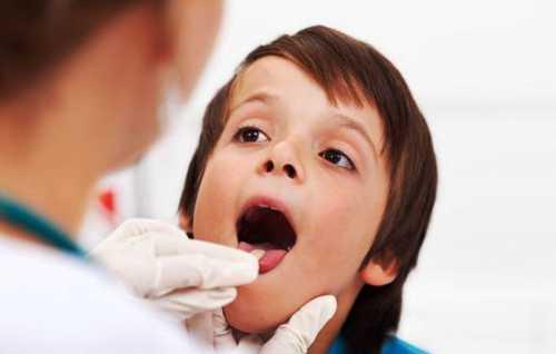 Воспаление носоглотки: симптомы, причины, это