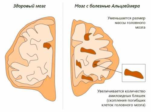 Предполагается, что существует генетическая предрасположенность к данному заболеванию выделен так называемый ген семейной формы, в случае мутации которого и развивается болезнь