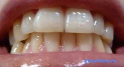 В клинической ортодонтии, а также челюстно лицевой хирургии неправильный прикус челюсти подтверждается на основе данных симметрос копии изучения формы зубных рядов с помощью электромиотонометрии определения тонуса челюстных мышц
