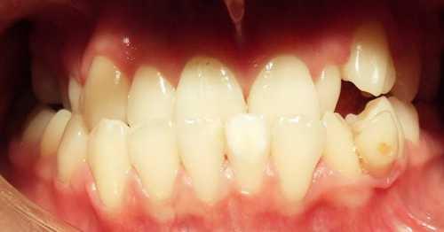 Так что стоматологпротезист непременно направит пациента со значительными нарушениями прикуса к ортодонту